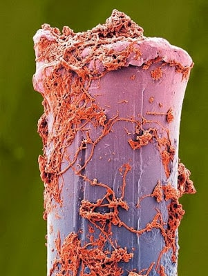 Poil brosse à dent miscroscope